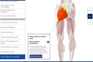 Rehabilitation for Lower Limbs for iPad